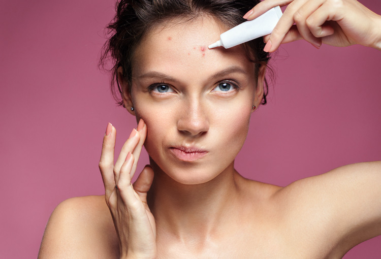 Woman applying acne treatment